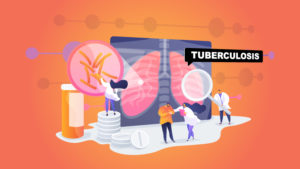 Answering common questions and doubts about Tuberculosis
